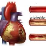 Čajevi protiv arterioskleroze