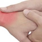 Reuma: lekovito bilje protiv reumatskog bola
