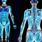 Fibromialgija simptomi, uzrok, lečenje, prirodni lekovi, ishrana