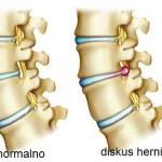 Diskus hernija simptomi, lečenje, operacija