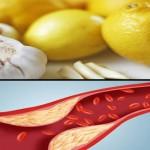 Čišćenje krvnih sudova od naslaga, holesterola, masnoća, nikotina