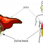 Kamen u žuči simptomi, dijagnoza, lečenje, operacija