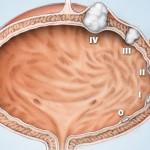 Rak bešike simptomi, metastaze, lečenje, prognoza