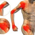 Rešite se artritisa i bola u zglobovima i leđima sa ovim lekom
