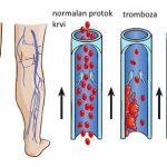 Tromb u nozi ili ruci  simptomi, lečenje, razbijanje, prevencija