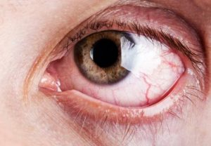 pucanje kapilara u oku