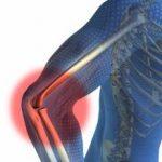 Bol u laktu i podlaktici mogući uzroci i lečenje