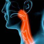 Rak grla simptomi, uzrok, lečenje, prognoza