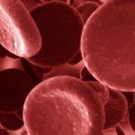 Trombocitopenija simptomi, lečenje, ishrana