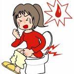 Unutrašnji hemoroidi simptomi, uzrok, lečenje, prirodni lekovi
