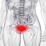 Cistitis – upala bešike simptomi, uzrok, lečenje