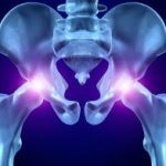 Bolovi u kukovima kod žena mogući uzroci