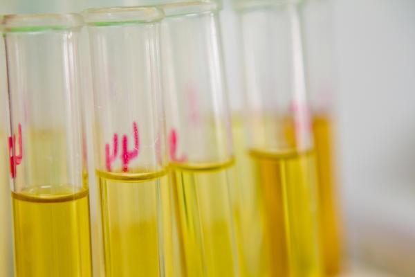 povisen bilurbin u urinu