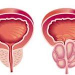 Rak prostate simptomi, lečenje, prognoza i preživljavanje