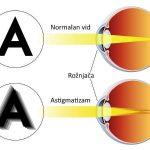 Astigmatizam oka simptomi, tipovi, lečenje, operacija