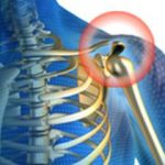 Šta uzrokuje bol u desnom ramenu i kada otići kod lekara