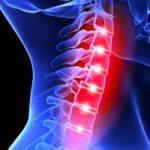 osteohondroza lecenje