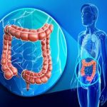 Rak debelog creva simptomi, dijagnoza, lečenje, prognoza