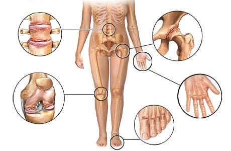 reumatoidni artritis prirodni lekovi