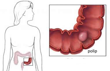 polip na debelom crevu