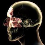 Akutna i hronična upala sinusa simptomi, lečenje, operacija