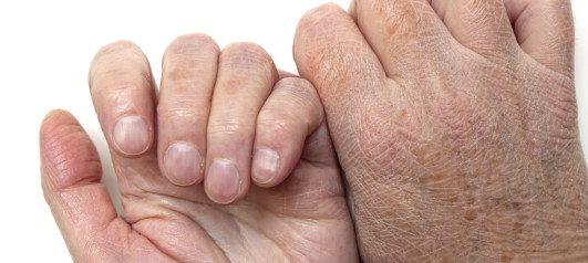 ispucale ruke