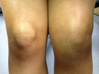 oteceno koleno