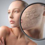 Maske za hidrataciju suve kože lica
