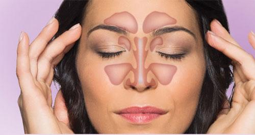 glavobolja od sinusa