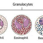 Povišeni i sniženi granulociti u krvi mogući uzroci