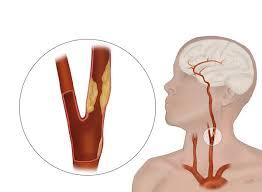 zakrecenje krvnih sudova vrata