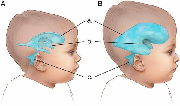 hidrocefalus kod dece