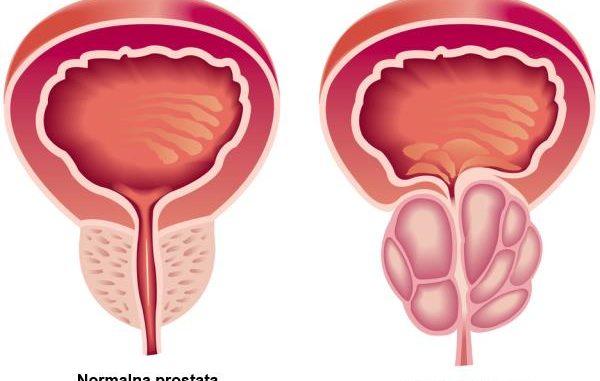 uvecana prostata kod muskaraca