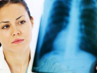 tuberkuloza pluca simptomi
