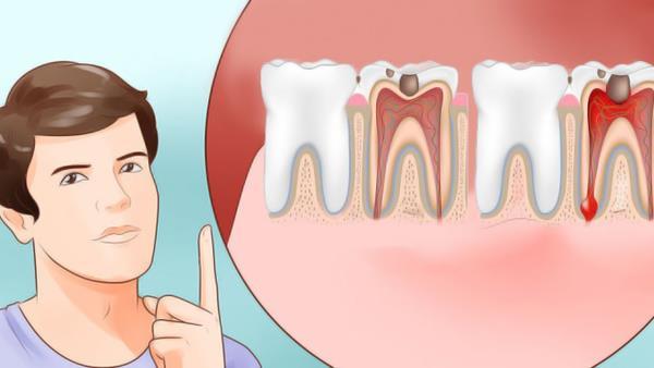 kako zaustaviti zubobolju
