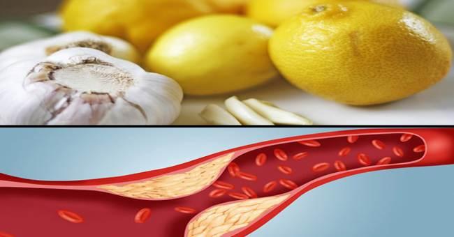 prirodno ciscenje krvnih sudova
