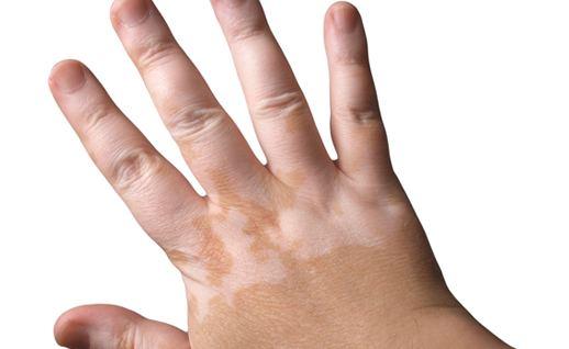 kozna bolest vitiligo