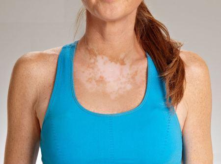vitiligo prirodni lek
