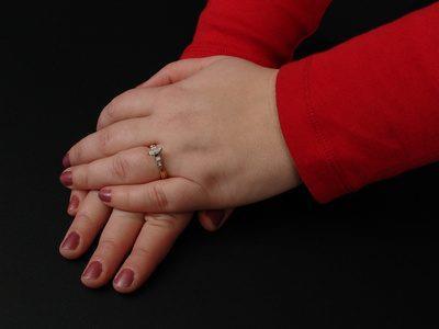 oticanje ruku u trudnoci