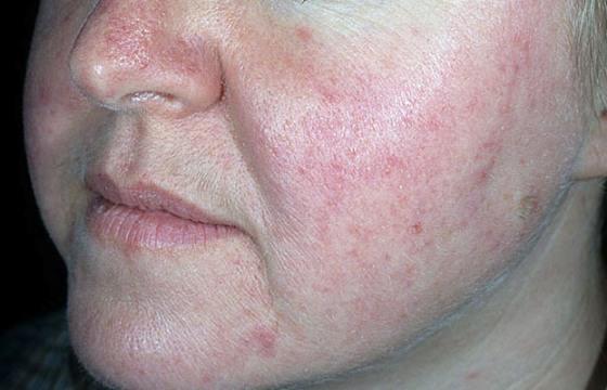 prirodni lekovi za crvenilo lica