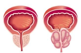 Okai a prostatitis lazarev a
