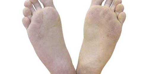 znojenje nogu