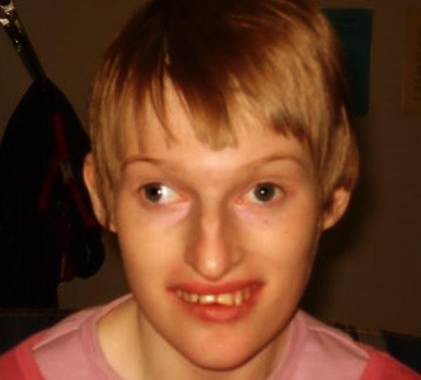 angelmanov sindrom