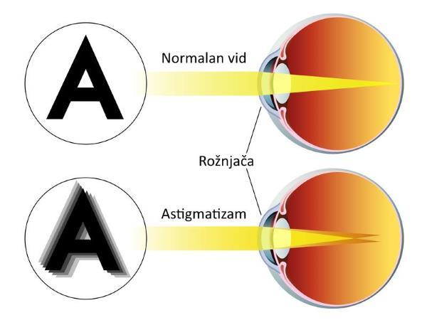 astigmatizam simptomi