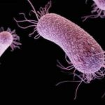 Pseudomonas aeruginosa bakterija