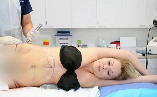 liposukcija listova