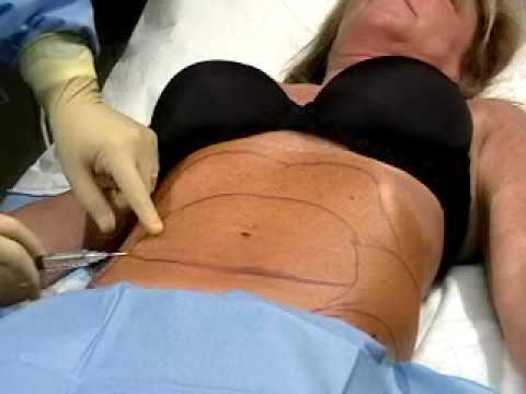 liposukcija-podbratka