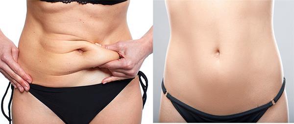 liposukcija stomaka
