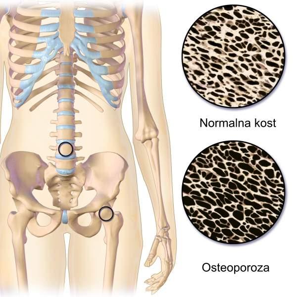 osteopenija-prirodno-lecenje