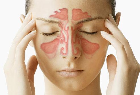 bolovi u sinusima